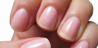 Đoán bệnh qua đôi bàn tay - biểu hiện sức khỏe của bạn